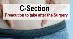 What Not to Do After C-Section (Cesarean Delivery)